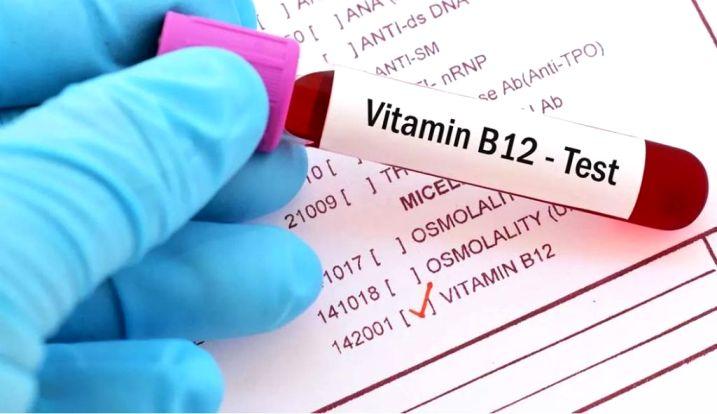 Verificați-vă nivelul de B12 în sânge